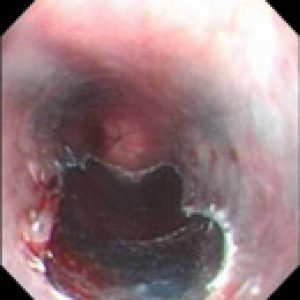 Woundless Endoscopic Mucosal Resection